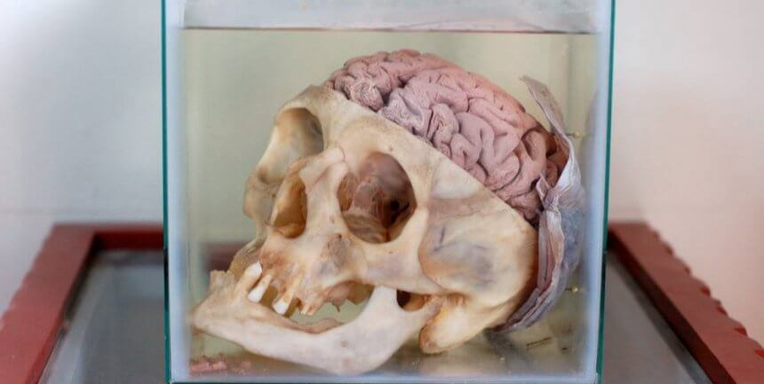 One of a thousand brains on display at the Museo del Cerebro (the Brain Museum) in Lima, Peru.