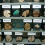 A number of brains on display at the Museo del Cerebros (Brain Museum) in Lima, Peru.